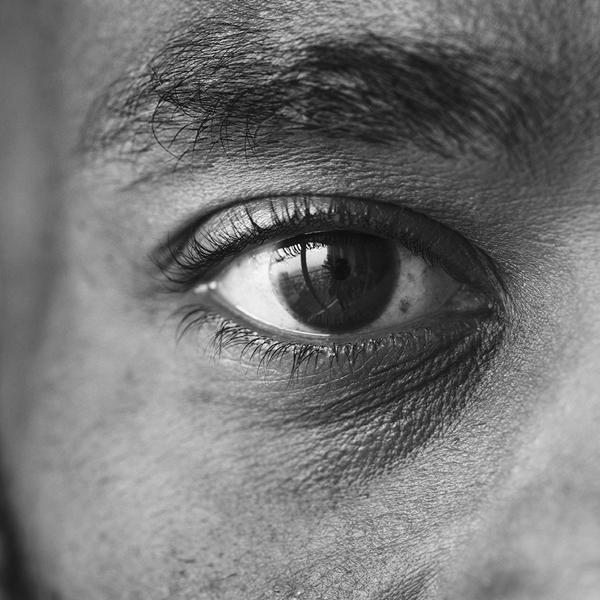 Titanium Healthcare closeup of a mans eye